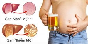 Gan nhiễm mỡ ở người tiểu đường có nguy hiểm không?